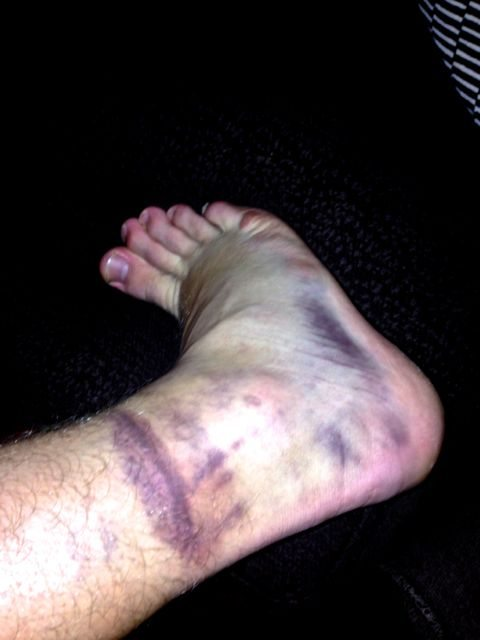 R's ankle